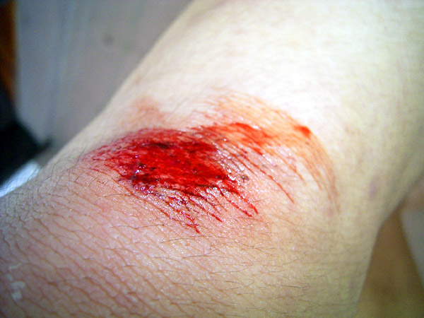 Bleeding knee my knee grinded the concrete